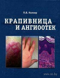 Крапивница и ангиоотек. Павел Колхир