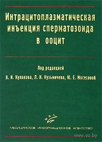Интрацитоплазматическая инъекция сперматозоида в ооцит. Л. Кузьмичев