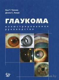 Глаукома. Иллюстрированное руководство. Нил Чоплин, Диана Ланди