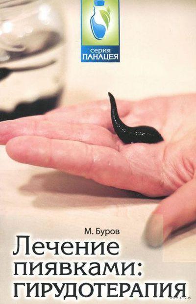 Лечение пиявками. Михаил Буров